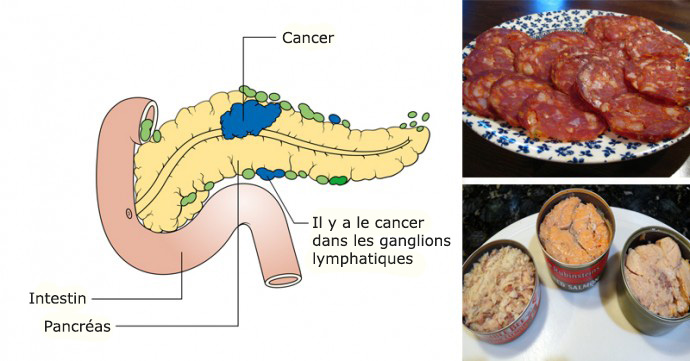 14 aliments cancérigènes que vous ne devriez plus jamais mettre dans votre bouche