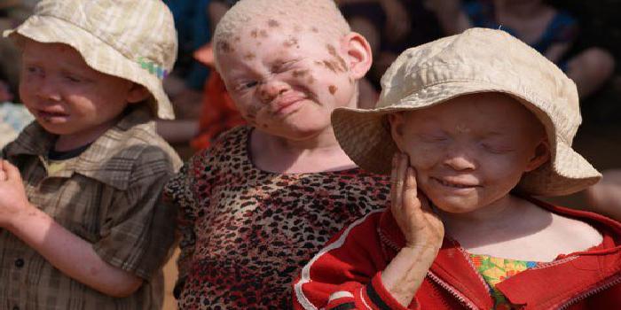A L'APPROCHE DES ELECTIONS: Les albinos craignent pour leur vie
