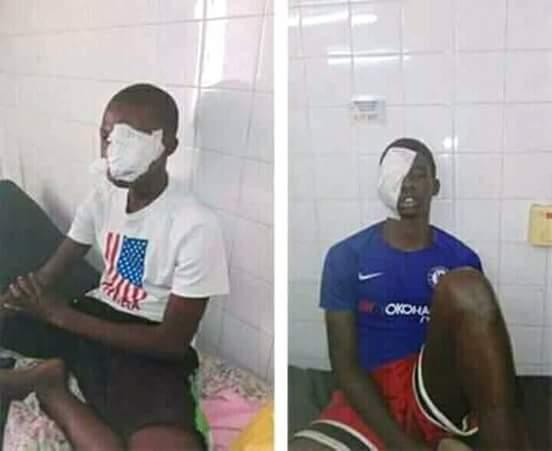 Ousmane MBAYE et Amadi TOURÉ, les deux élèves mis KO par la police