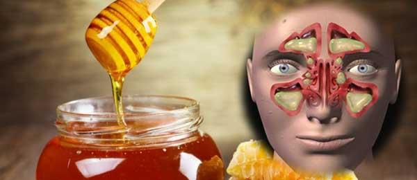 Sinusite : soignez-vous au miel !