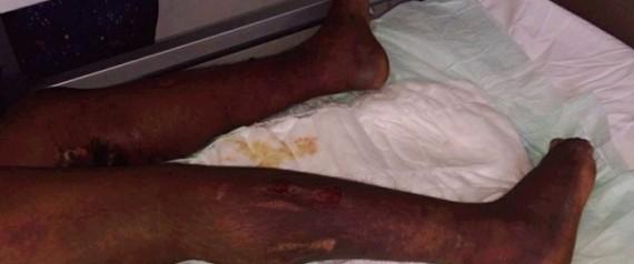 Casablanca : une employée domestique torturée par ses patrons suscite la colère