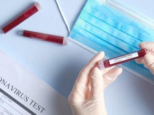 Un million et demi de Français pourraient avoir contracté le coronavirus